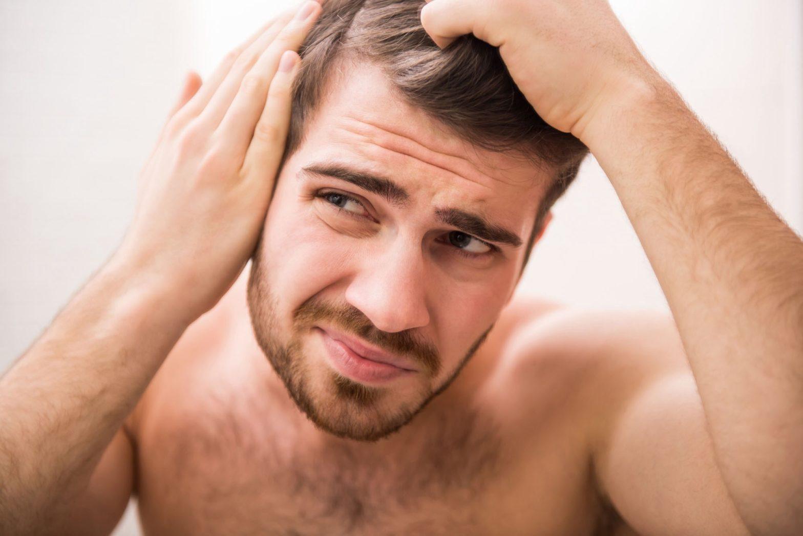 baldness Causes